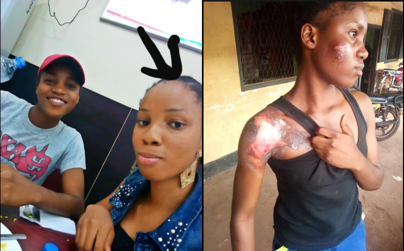 Student Pours Hot Water On Her Flatmate For Misplacing Her Item