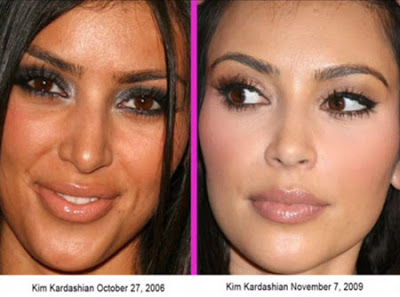 See Kim Kardashian Before Amp After Plastic Surgery Photos
