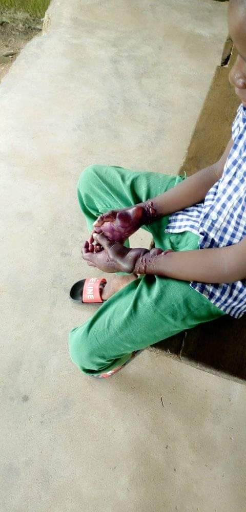 Shocking! Woman Burns Stepson's Hands 2
