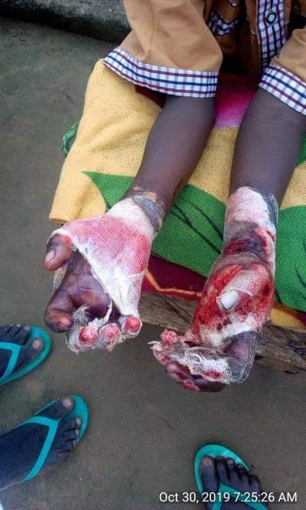 Shocking! Woman Burns Stepson's Hands 4
