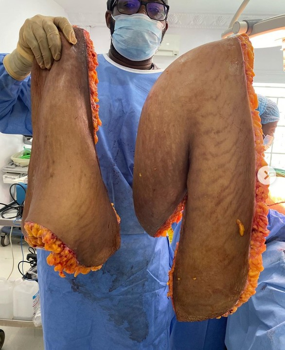 11.6kg Skin Removed From Body Of A Cosmetic Surgery Patient In Lagos (Graphic Photos)