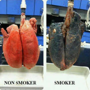 Smokers Are Liable To Die Health Nigeria