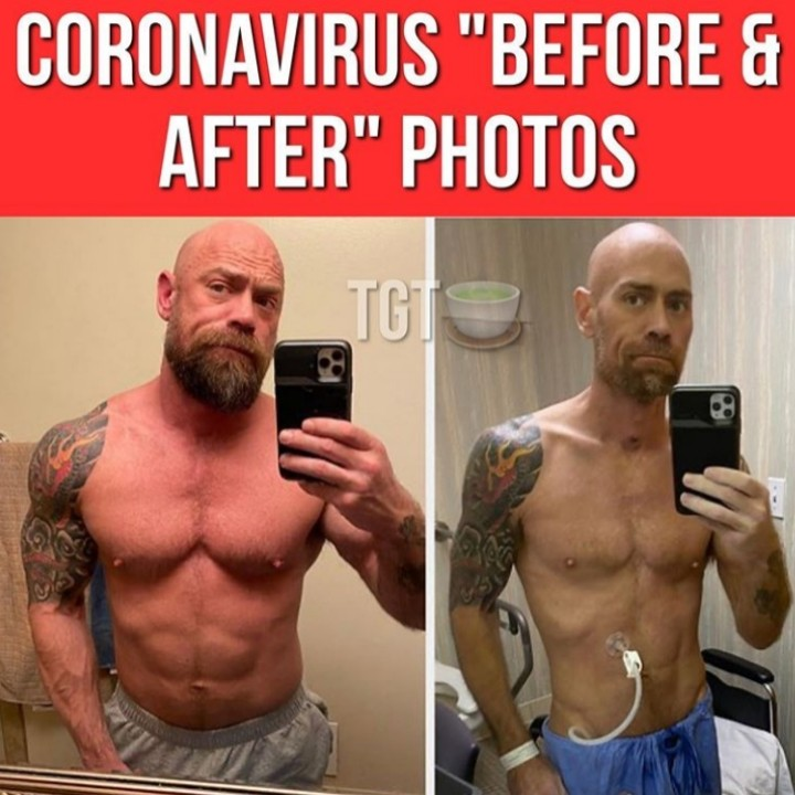 Viral Photo Of A Coronavirus Patient , His Before And After Photo