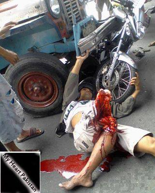 Hope And Change In Tunisia >> Nasty effects of road accidents (caution very graphic and potentially offensive images)! - Car ...