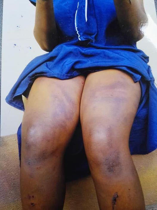 Woman Beaten & Stripped By Her Employer In Edo Over Theft Allegation (Graphic) 2