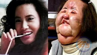 Surgery Gone Wrong Model Completely Damages Face Photo