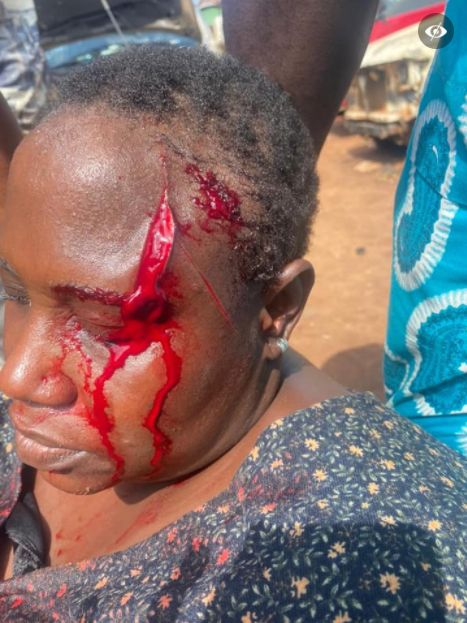 Woman Stabs Her Relative On The Head With A Broken Bottle For Shaming Her Son(Graphic)