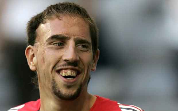36f0c47bc83f85 These are the world ugliest footballer, u may add ur own pics after the cut!