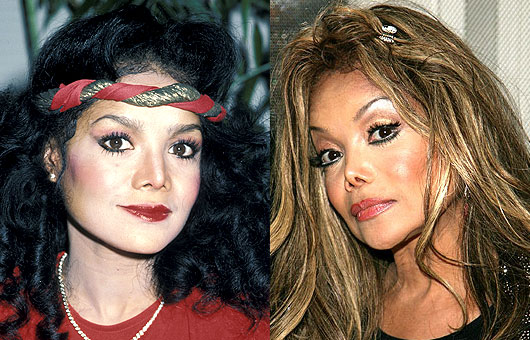 Worst Clebrity Plastic Surgery Pics Celebrities 2