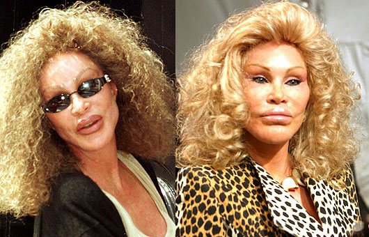 Worst Clebrity Plastic Surgery Pics Celebrities 1