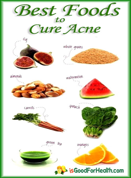 home remedies for acne and acne scars