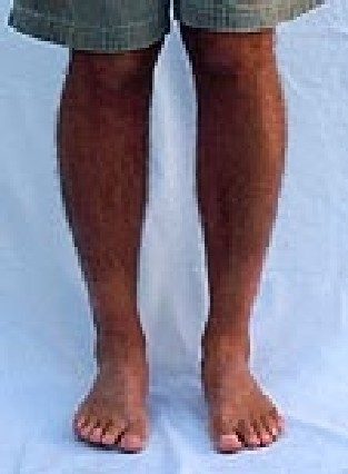 bowlegs single girls 186 likes how to fix bow legs and knock knees  boys love philippines girls and  single mom just for fun  corrected bow legs, before and after treatment.