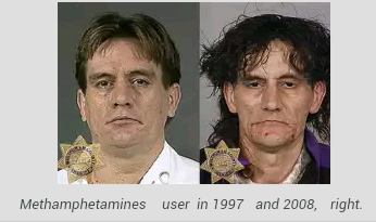 The faces of despair: Shocking images of meth addicts