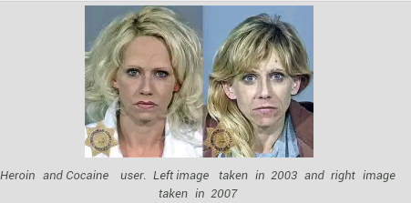 15 Shocking Before-after Pics Showing Effects Of Drug