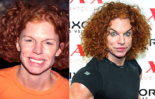 21 Celebrity Plastic Surgery Nightmares Before Amp After