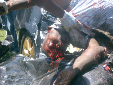 Nasty effects of road accidents (caution very graphic and potentially ...