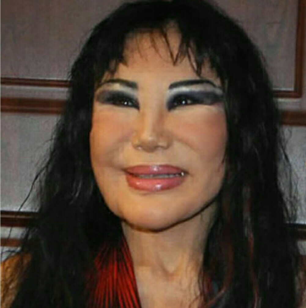 13 Plastic Surgeries Gone Wrong Very Wrong Photos