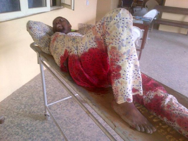PHOTOS: APC And PDP Supporters Clash In Ekiti, Man Shot -