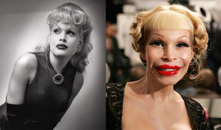 15 Celebrities Whose Plastic Surgeries Went Wrong Pics