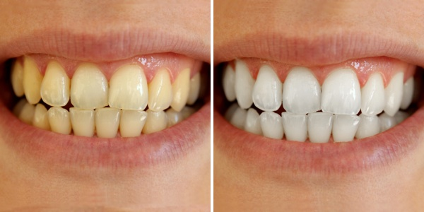Guaranteed Whiten Teeth How To Whiten Teeth In 2 Minutes Health