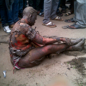 Bird Turns To Woman After Electric Shock In Oshodi, Lagos (graphic Pictures)