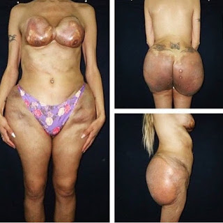 Bilderesultat for bum implants gone wrong