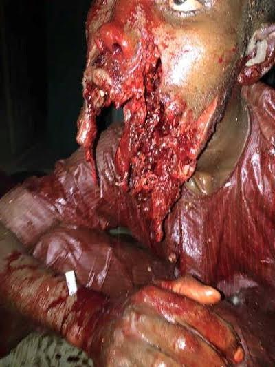 Extremely Graphic Photo: Can Any Doctor/surgeon Save Him