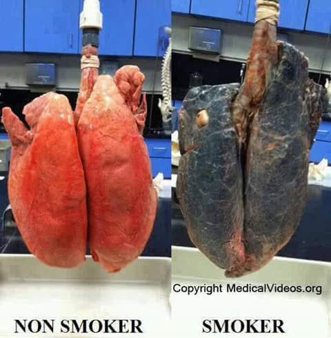 smoking vs non smoking New evidence suggests e-cigarettes are not without risks to human health, but can be useful in getting people to kick their smoking habit.
