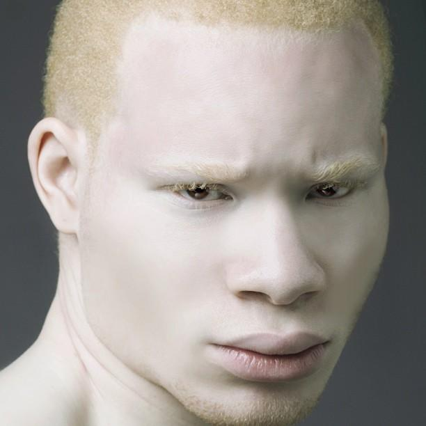 Albino pics photos 91