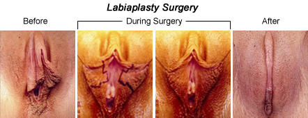 my girl's right labia minoria is longer than the left one. help, Human Body