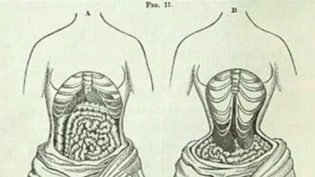 cea49fb655c 5 Dangers Of Waist Trainers That Ladies Should Know - Health - Nigeria
