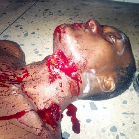 This man almost got his head removed with a bottle during fight over age (pics)