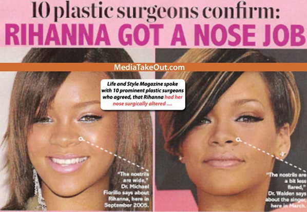 Very good surgeon though  Rihanna Before And After Nose Job