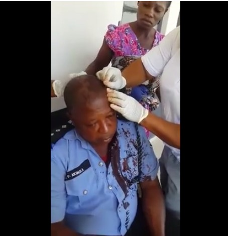 Police Officer Attacked By Thugs In Kogi Ahead Of Gov. Elections (Photos)
