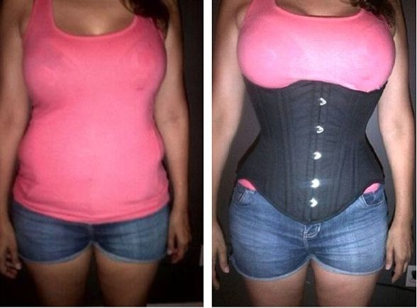 27ffd4bae5 Dear Ladies  This Is Why Waist Training Is Bad For Your Health - Health -  Nairaland