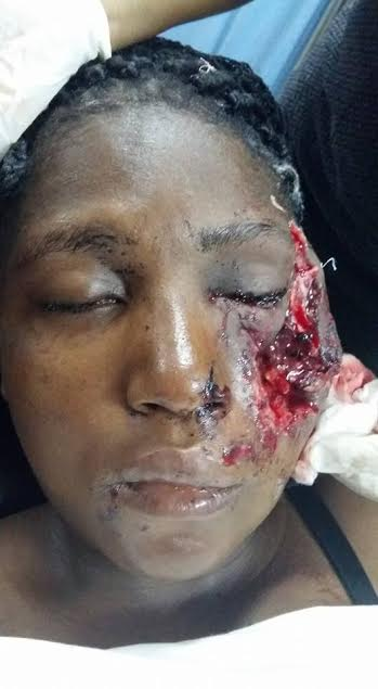 PHOTO: Poly Student Loses Her Left Eye From Robber's Bullet In Delta