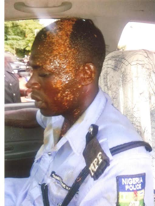 Man Sent To Prison For Pouring Hot Soup On Policeman (See Photo)