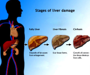 Five Daily Habits That Can Damage Your Liver.