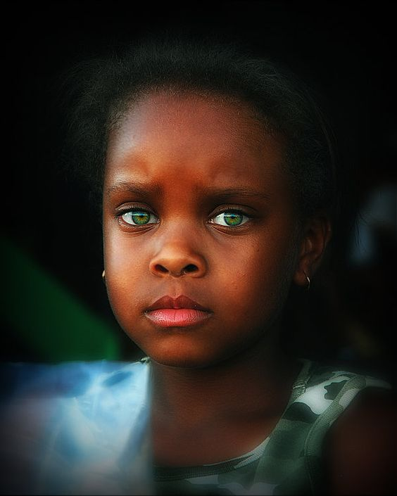 Black People With Blue Eyes The Beautiful Few Health