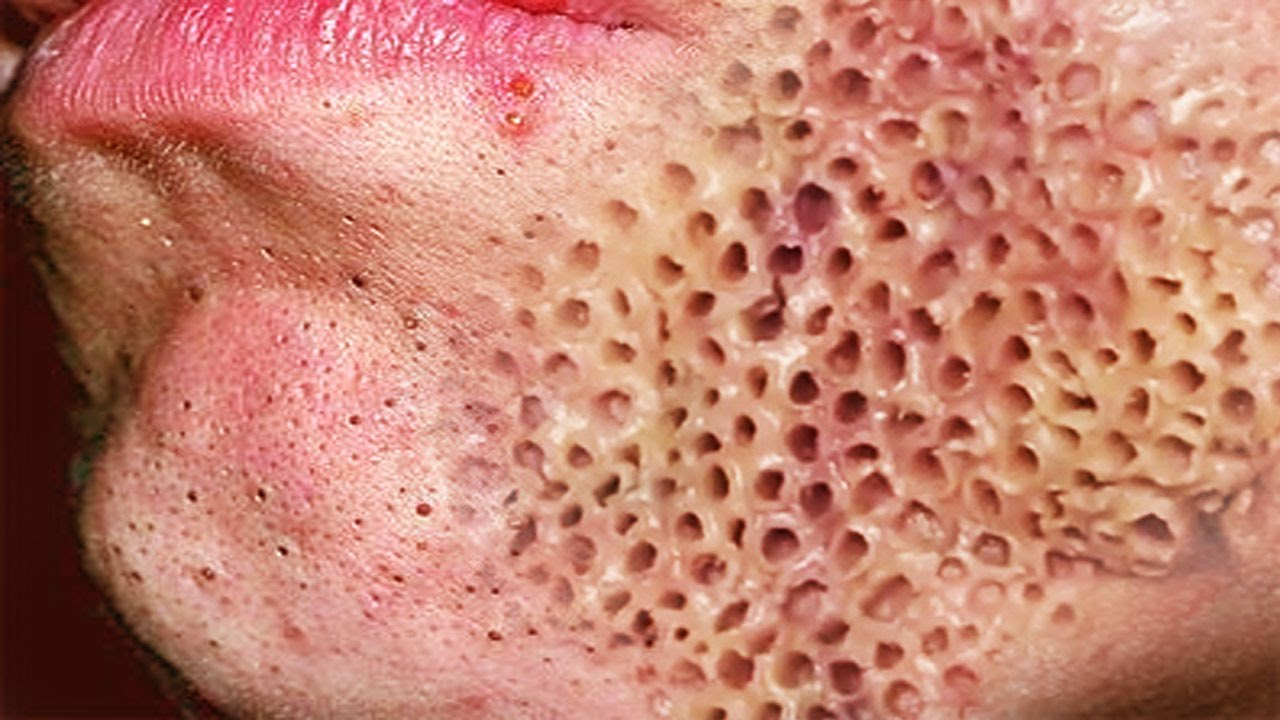 Test To Know You Have Trypophobia Graphic Content Health Nigeria