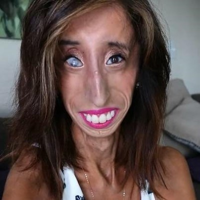 World's Ugliest Woman, Lizzie Velasquez Fighting Strongly ...