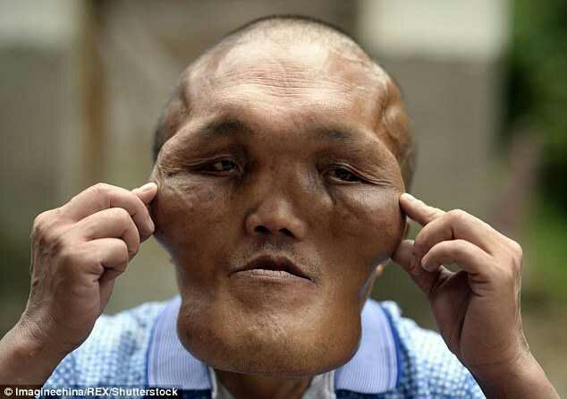 Facial Deformity: Man With 'Alien-Like' Face Hoping For ...