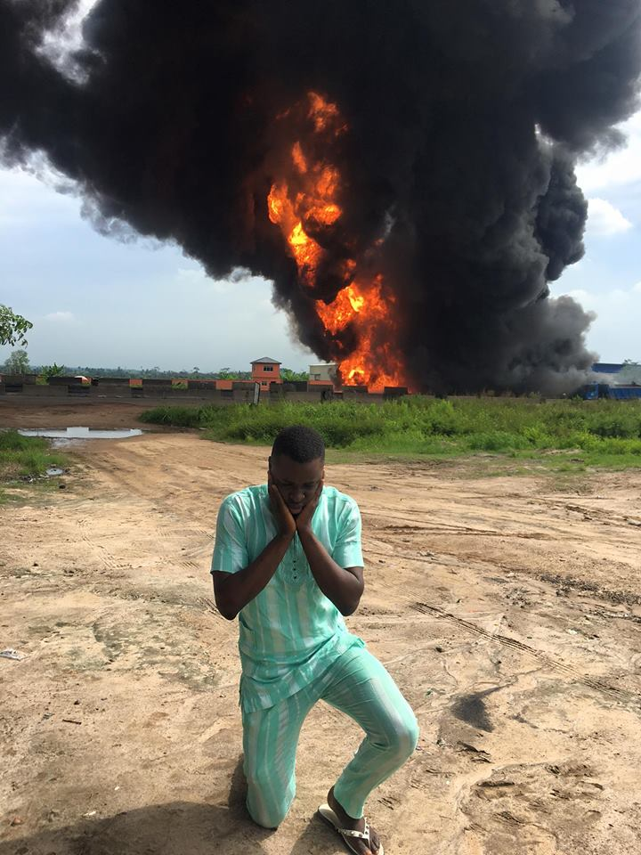 See What This Young Man Did After Escaping Fuel Tanker Explosion (Photos) «