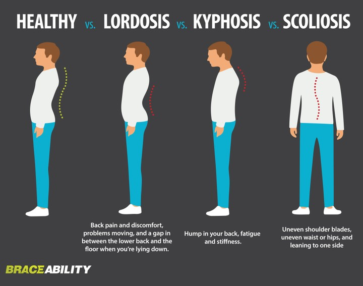 Kyphosis A K A Hunch Back Types Symptoms Causes And