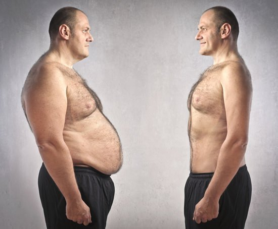 Different methods of weight loss surgery