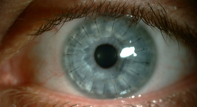 cornea transplant essay In india, we have an estimated 46 million people with corneal blindness that is  curable through corneal transplantation made possible by eye donation.
