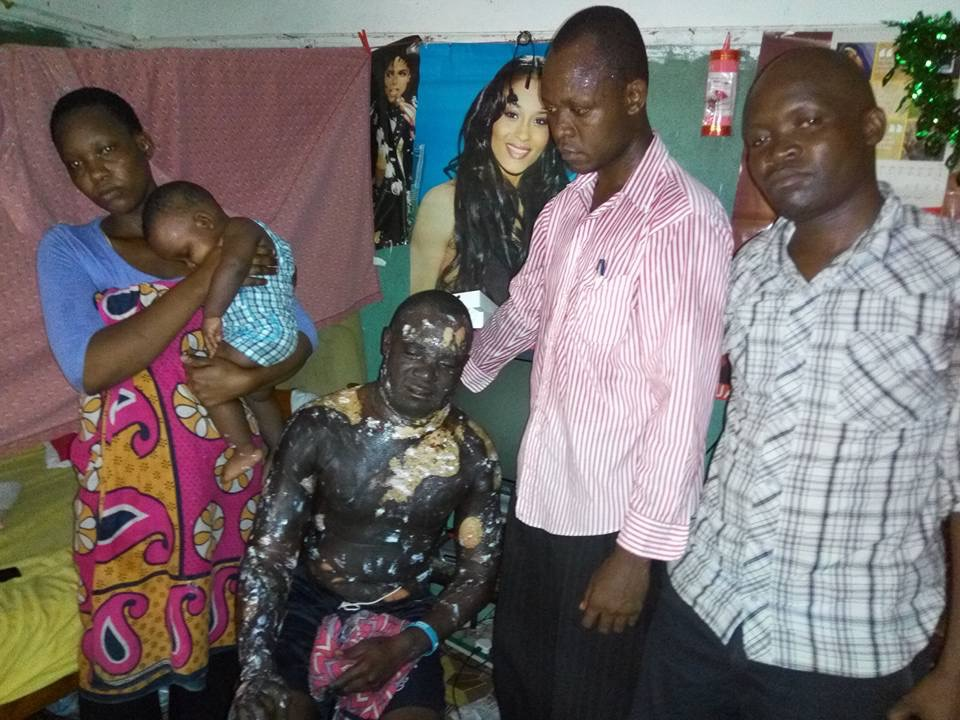 Woman Burns Her Sleeping Husband With Hot Oil On Xmas Day (Graphic Pics)