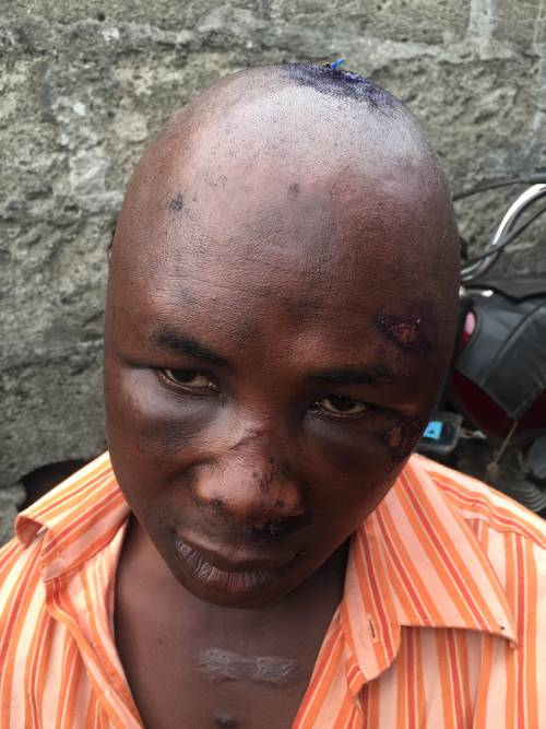 Bribe-Seeking Police In Lagos Instigates Mob To Beat Motorcyclist To Coma