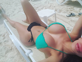 Photos Of An Instagram Model With Butt Implants Gone Wrong