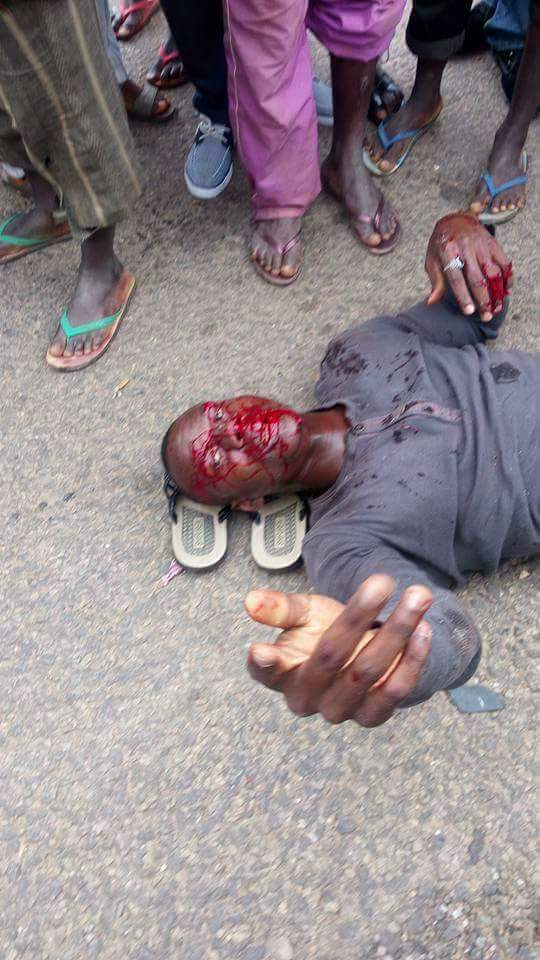 Unidentified Passengers Left Bloodied After Ghastly Motor Accident In Abuja (Very Graphical Photos)